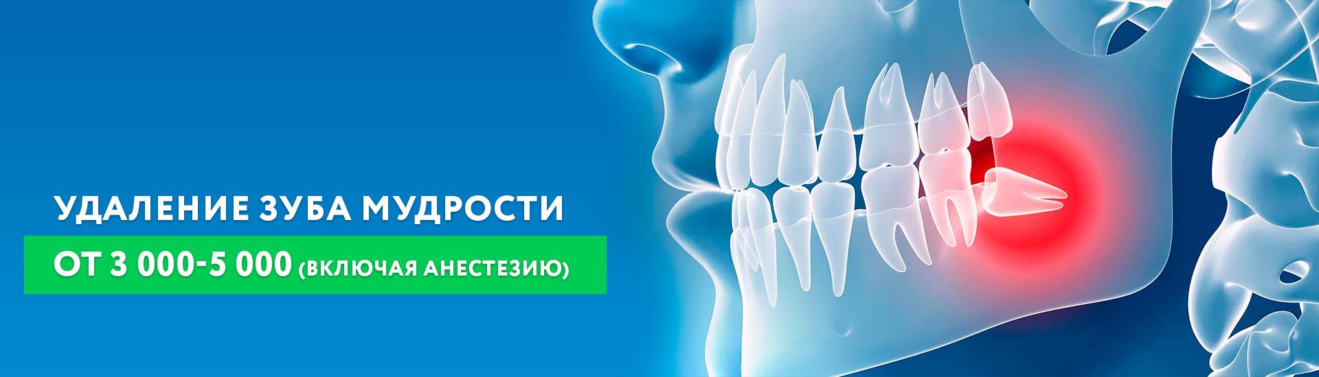 Удаление зуба мудрости от 3000-5000